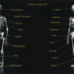 Exhibit 400 - Graphic Showing Bones Found in Burn Pit